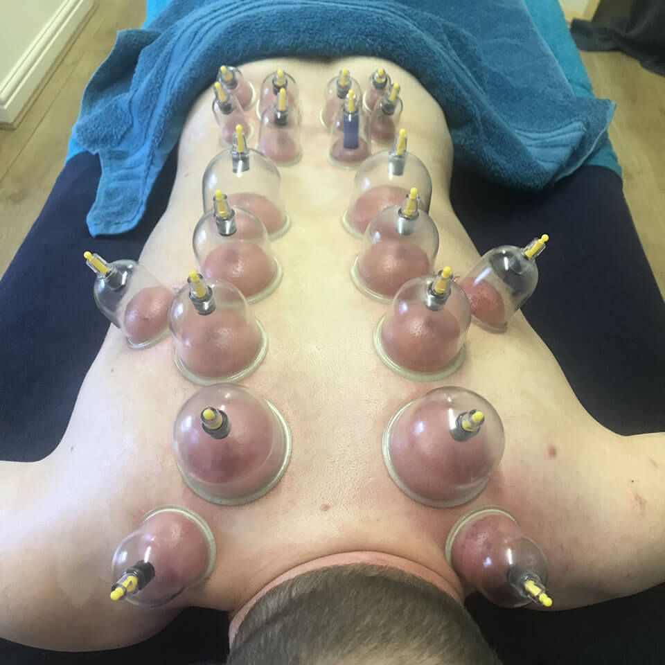 Dry cupping 01