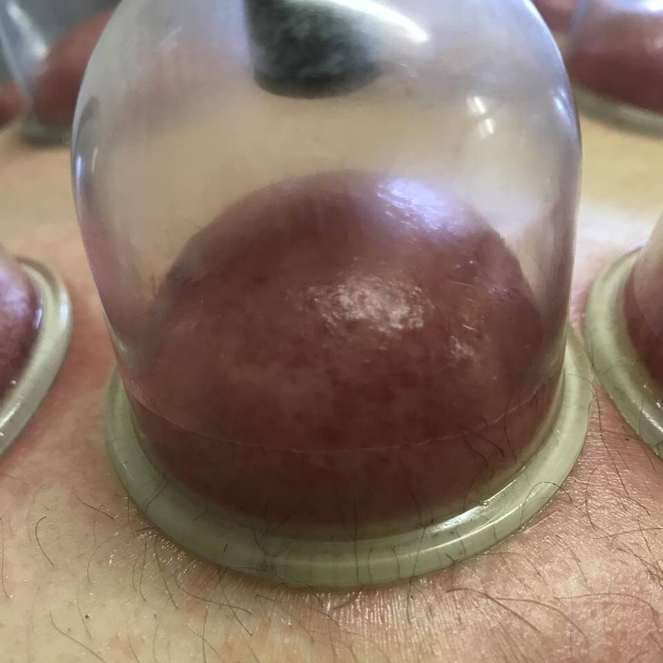Dry cupping 03