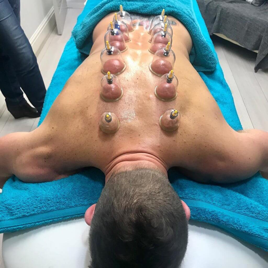 sports dry cupping