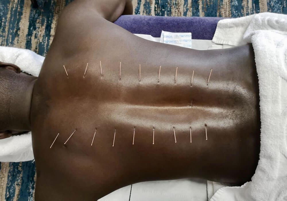 Back dry needling