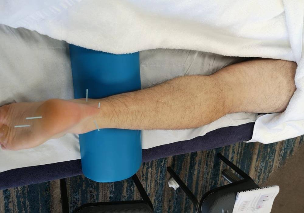 Leg dry needling